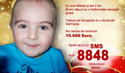 Marian s-a născut cu o malformație venoasă gravă și are nevoie de o intervenție chirurgicală dificilă